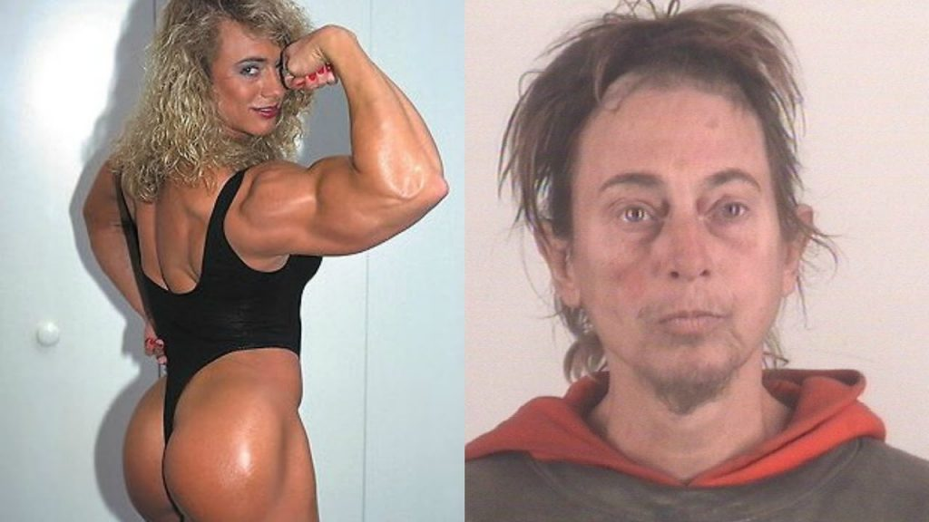 Denise Rutkowski is a female bodybuilder who, due to the